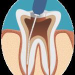 歯の神経の除去